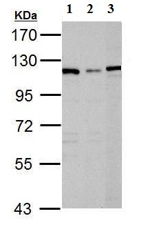 Western blot - Anti-DPYD antibody (ab96496)