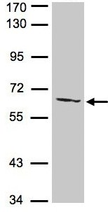 Western blot - Anti-AGXT2L1 antibody (ab96535)