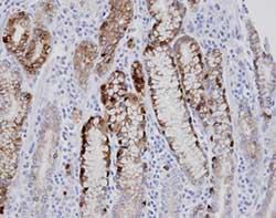 Immunohistochemistry (Formalin/PFA-fixed paraffin-embedded sections) - Anti-AGXT2L1 antibody (ab96535)
