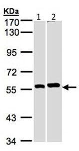 Western blot - Anti-PPP3CB antibody (ab96573)