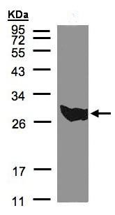 Western blot - Anti-PGAM1 antibody (ab96616)