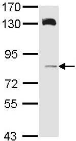 Western blot - Anti-HPS6 antibody (ab96656)
