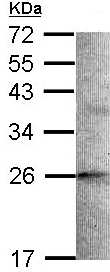 Western blot - Anti-STMN2 antibody (ab96662)
