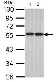Western blot - Anti-ETEA antibody (ab96673)