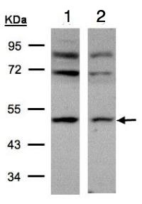Western blot - Anti-AP2M1 antibody (ab96679)