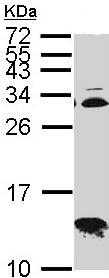 Western blot - Anti-Cytochrome C Oxidase subunit VIb antibody (ab96692)