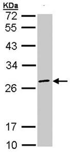 Western blot - Anti-eIF3K antibody (ab96726)