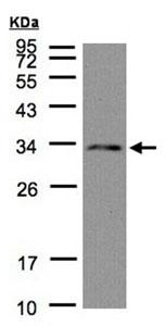 Western blot - Anti-NSL1 antibody (ab96728)