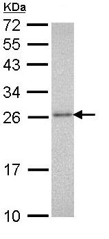 Western blot - Anti-Proteasome 20S alpha 3 antibody (ab96746)