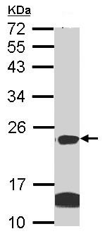Western blot - Anti-Claudin 14 antibody (ab96786)