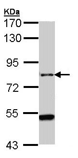 Western blot - Anti-AGAP1 antibody (ab96827)