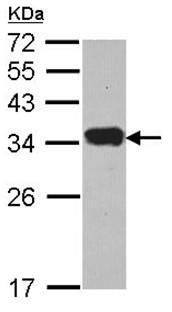 Western blot - Anti-Protease Inhibitor 15 antibody (ab96835)