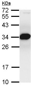 Western blot - Anti-Proteasome Inhibitor subunit 1 PI3 1 antibody (ab96845)