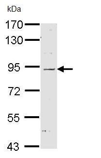 Western blot - Anti-CARD4 antibody (ab97278)