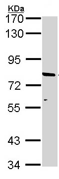 Western blot - Anti-ABCD2 antibody (ab97383)