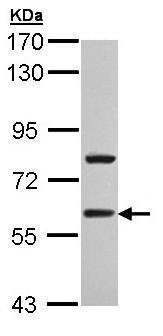 Western blot - Anti-TBLR1 antibody (ab97398)