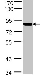 Western blot - Anti-PFKL antibody (ab97443)