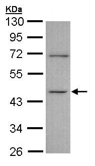 Western blot - Anti-ITPK1 antibody (ab97447)
