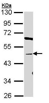 Western blot - Anti-BAAT antibody (ab97455)