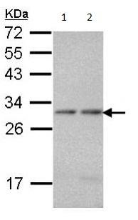Western blot - Anti-PSMA7 antibody (ab97565)