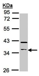 Western blot - Anti-RASSF2 antibody (ab97617)
