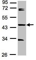 Western blot - Anti-SDCCAG3 antibody (ab97666)