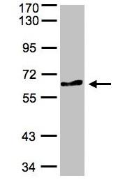 Western blot - Anti-TESK2 antibody (ab97696)