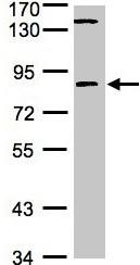 Western blot - Anti-LIM kinase 2 antibody (ab97766)