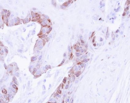 Immunohistochemistry (Formalin/PFA-fixed paraffin-embedded sections) - Anti-LIM kinase 2 antibody (ab97766)