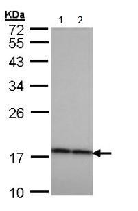 Western blot - Anti-CRYBA4 antibody (ab97771)