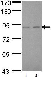 Western blot - Anti-LIM kinase 2 antibody (ab97773)