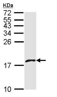 Western blot - Anti-PF4V1 antibody (ab97799)