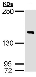 Western blot - Anti-DIP2 homolog B antibody (ab97804)