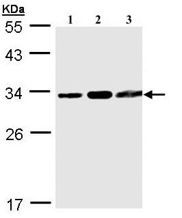 Western blot - Anti-CDA11 antibody (ab97818)