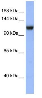 Western blot - Anti-Mineralocorticoid Receptor antibody (ab97834)