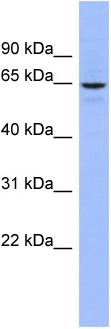 Western blot - Anti-SLC34A3 antibody (ab97839)