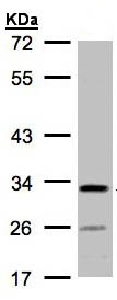 Western blot - Anti-C4orf19 antibody (ab97843)