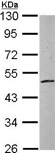 Western blot - Anti-ZNF140 antibody (ab97854)