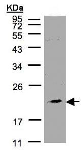 Western blot - Anti-KLRC4 antibody (ab97859)