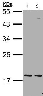 Western blot - Anti-PCNP antibody (ab97909)