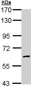 Western blot - Anti-GALNS antibody (ab97913)