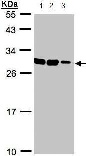 Western blot - Anti-ASB9 antibody (ab97918)