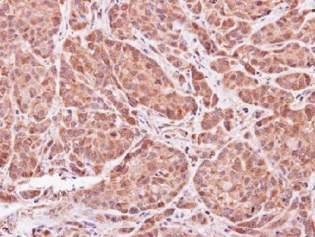 Immunohistochemistry (Formalin/PFA-fixed paraffin-embedded sections) - Anti-ASB9 antibody (ab97918)