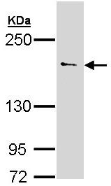 Western blot - Anti-UNC13B antibody (ab97924)