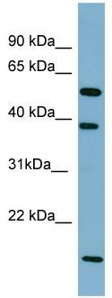 Western blot - Anti-SLC10A1 antibody (ab97947)