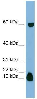 Western blot - Anti-Statherin antibody (ab97950)