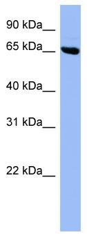 Western blot - Anti-SHC3 antibody (ab97972)
