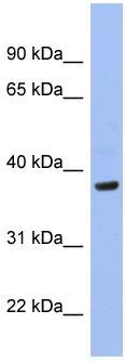 Western blot - Anti-PIM1 antibody (ab98004)