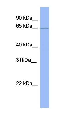 Western blot - Anti-METTL3 antibody (ab98009)