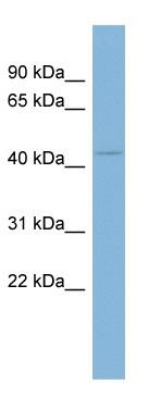 Western blot - Anti-Ceramide glucosyltransferase antibody (ab98030)